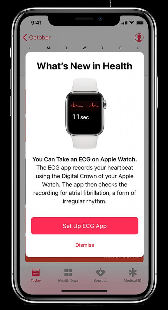Set up ECG app on Apple Watch